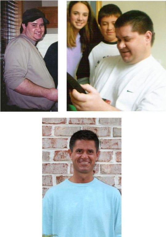 Losing 150 lbs and Living with Dystonia