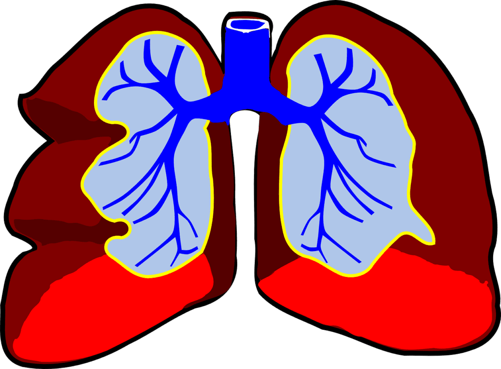 The University of Southern California's Keck School of Medicine Just Got Funding to Research Rare Lung Diseases