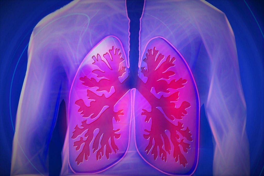 The First Patient Has Been Dosed in a Study of a Drug For Idiopathic Pulmonary Fibrosis