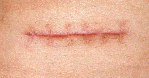 entenda-o-que-e-cicatriz-hipertrofica-e-qual-a-diferenca-da-queloide-1