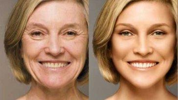210 - Você Sabe Como Sua Pele Envelhece?