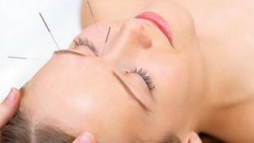 acupuntura - Trate o estresse com acupuntura!