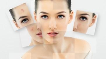 iStock 000022547636 Small - Produtos de beleza para pele oleosa