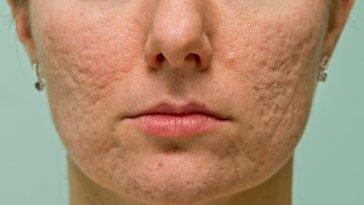 iStock 000033016150 Small - Acne: Os Melhores Tratamentos