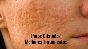 acne scars picture id179598340 - Poros Dilatados - Melhores Tratamentos