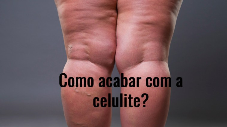 varicose veins closeup fat female cellulite legs picture id849084986 - Celulite Nas Pernas Tratamentos! O Guia Completo