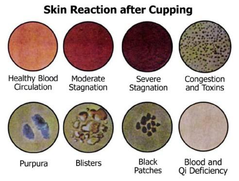 Skin reaction - Celulite Cup - O Que é, Como Usar, Resenha