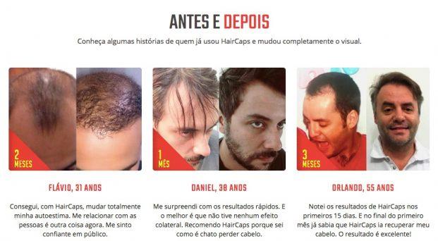 antes e depois haircaps.com .br  621x342 - Como Fazer o Cabelo Crescer Mais Rápido