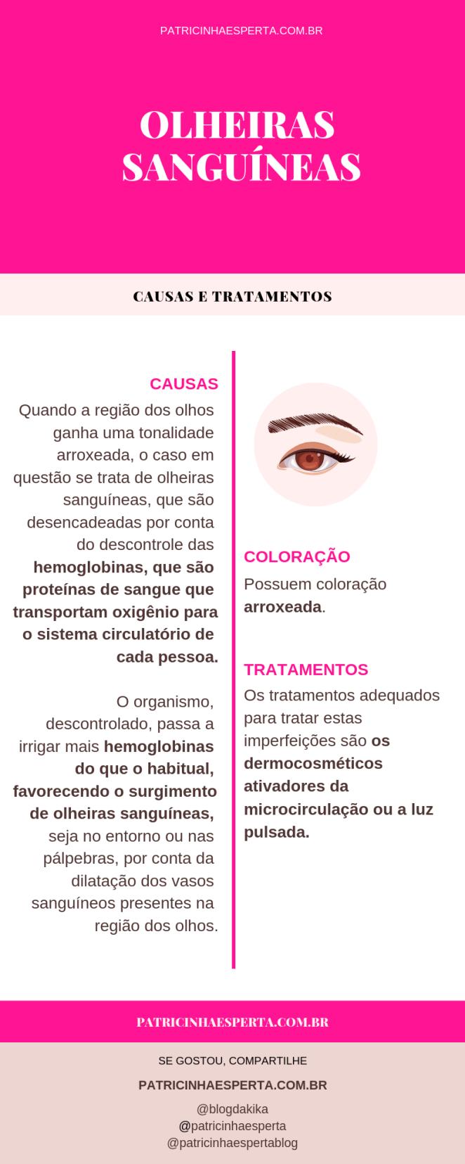 olheiras sanguinias - Como Tirar Olheiras - Tratamentos, Receitas Caseiras, Causas, Vídeos