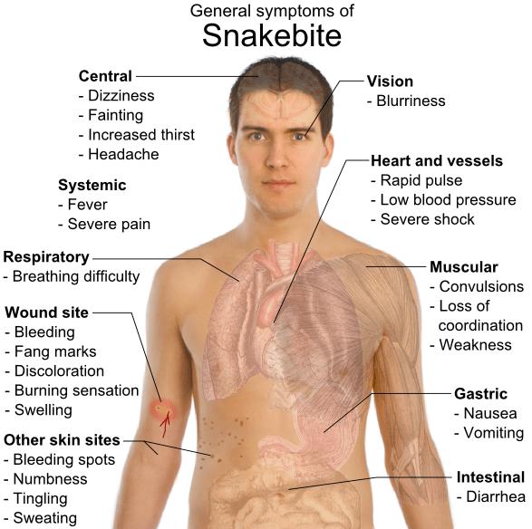 Snakebite_symptoms