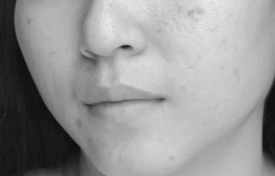 cicatici acne