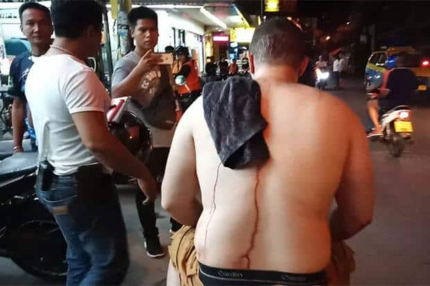Tourist stabbed by two Thai men in Pattaya