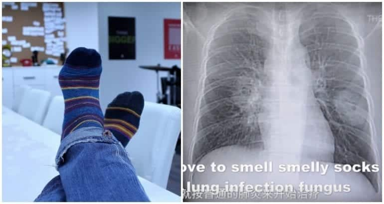 Chinese Man Obsessed With Sniffing His Socks After Work Gets Fungal Infection in His Lungs