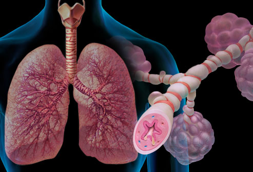 Respiratory Series: Case 1