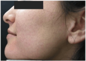 Lady – cheek acne – after