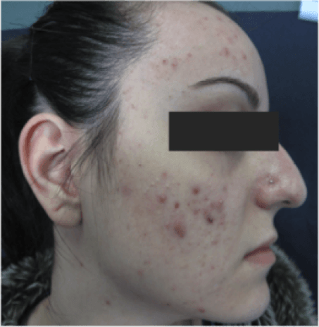 Lady – full face acne – before