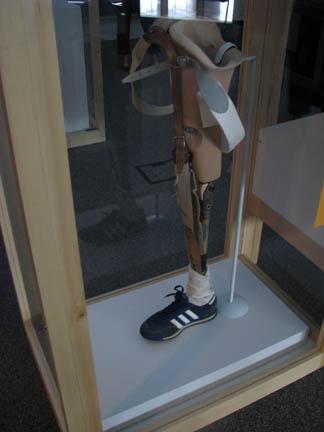 Terry Fox's Prosthetic Leg