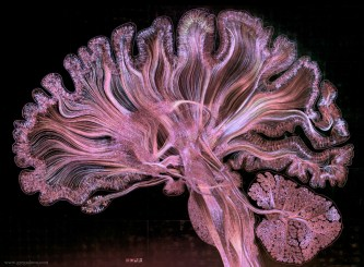 Self Reflected brain image in violet by Greg Dunn