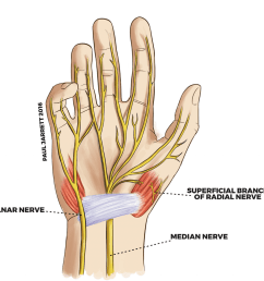 diagram of the main nerves that are connected from the wrist to the hand [ 1024 x 999 Pixel ]