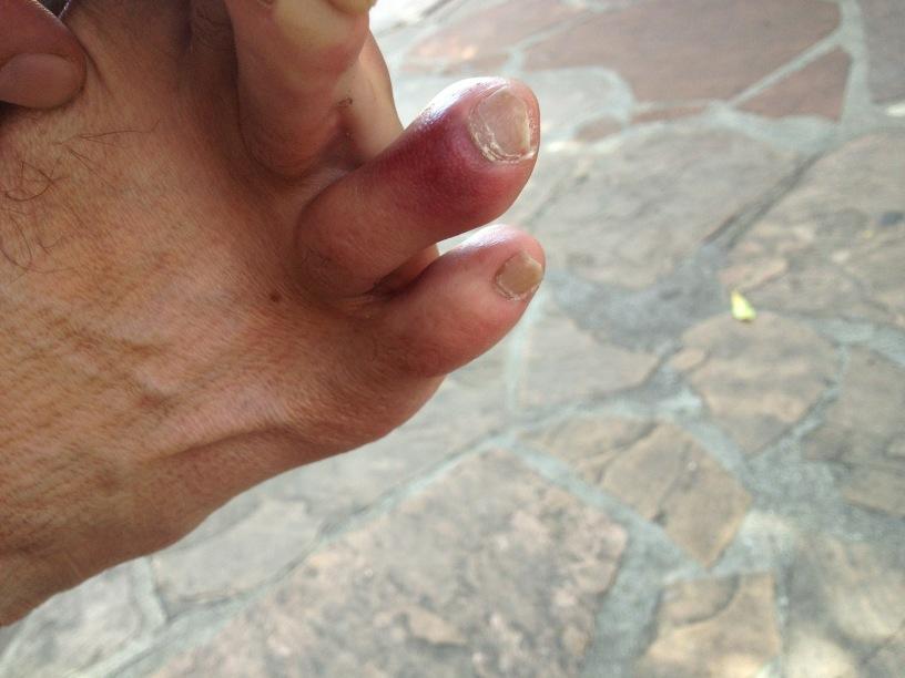 chris pratt on Twitter Does this toe look broken httptcoiKMm2CnJ