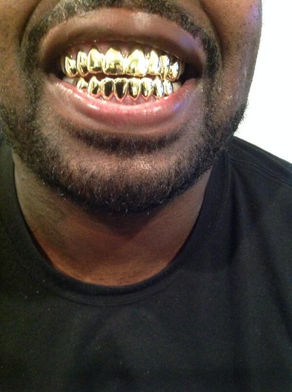 Gold Teeth Miami : teeth, miami, Landogolds, Goldteeth, (@landogolds), Twitter