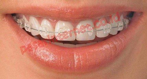 Cara Memutihkan Gigi Untuk Pemakai Behel Member Stokis Distributor