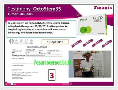 Testimoni Octostem35 Firaxis Sembuhkan penyakit Tumor paru - paru