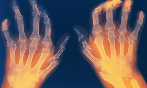 Scientists Discover How Vagus Nerve Stimulation Treats Rheumatoid Arthritis  #Robots #AI