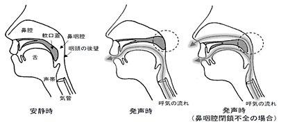 test ツイッターメディア - 【開鼻声とは】  人は「グ」という時は鼻咽腔を閉鎖しないといけない ALS等で球麻痺の人はコレが出来ず「ヌ」になる  https://t.co/3MGBqWIEuV