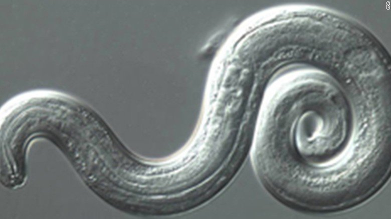 An infant was hospitalized for rare brain parasite in Hawaii