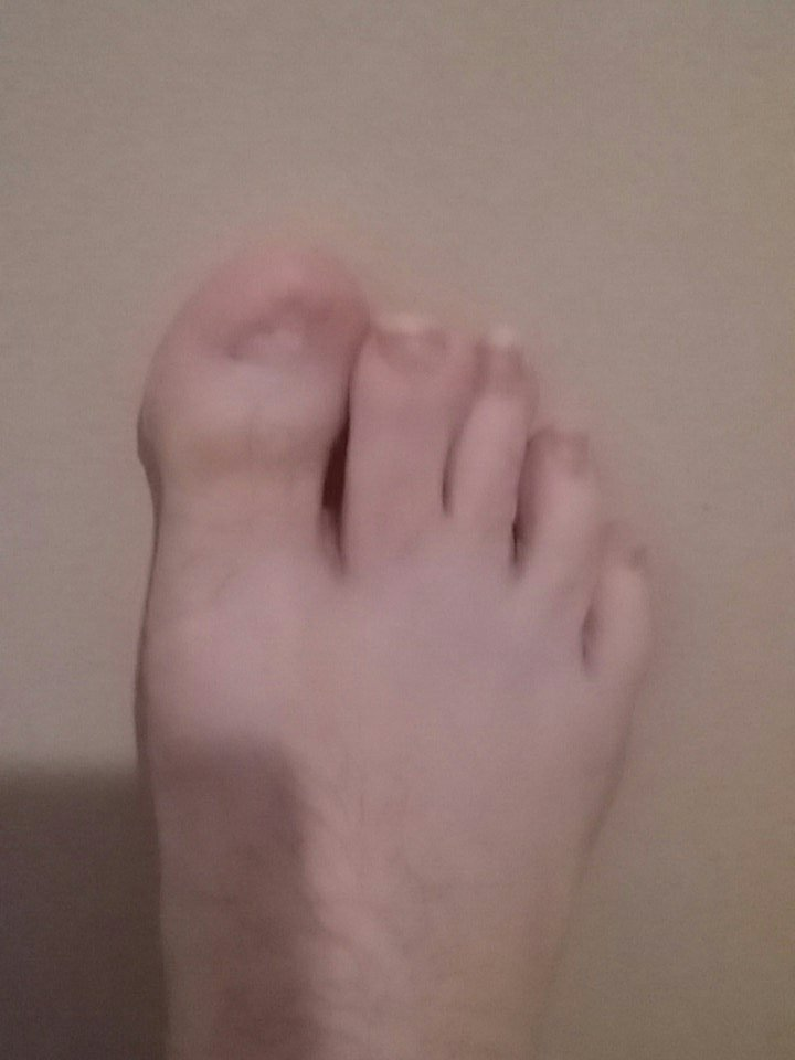 Ugly Toe Pics : Productions, Twitter:, Surgery, Foot!…