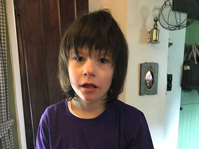 Boy with severe epilepsy who was treated with cannabis oil is now 300 days seizure-free