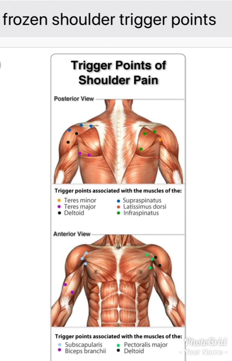 medium resolution of tha muscle whisperer on twitter if you have shoulder pain tightness contact me tha muscle whisperer painfixtherapy https t co jsqcabaejf stop being in