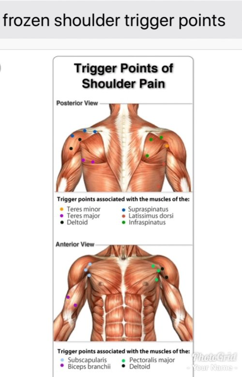 small resolution of tha muscle whisperer on twitter if you have shoulder pain tightness contact me tha muscle whisperer painfixtherapy https t co jsqcabaejf stop being in
