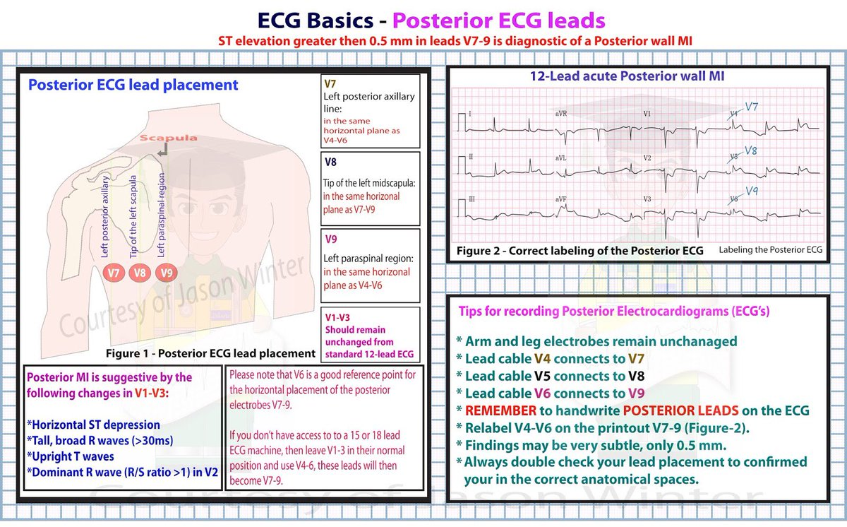 Unlabed 4 Lead Ecg Placement Diagram Trusted Wiring Diagrams Ekg 12 Colors Coloringsite Co 15 Electrical