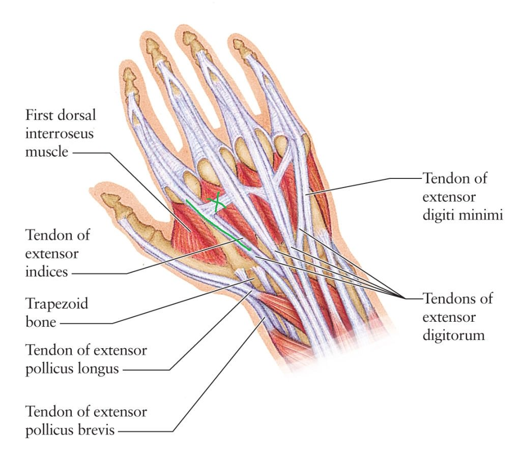 hight resolution of remco merkestijn on twitter been having left hand issues for weeks left hand tendons diagram