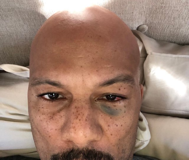 Common On Twitter I Got My Eye Blackened Playin  F0 9f 8f 80today However The Fight Must Go On