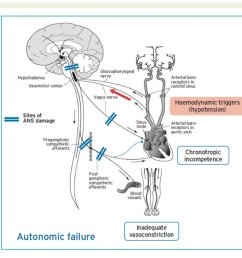 alfonso valle on twitter the mechanism of autonomic failure orthostatic hypotension v a escardio practical instructions for treatment of reflex syncope  [ 1125 x 992 Pixel ]