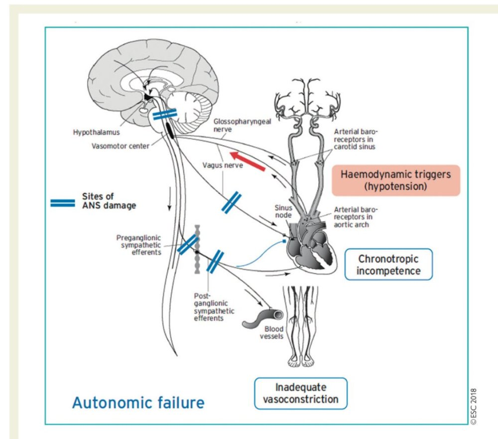 medium resolution of alfonso valle on twitter the mechanism of autonomic failure orthostatic hypotension v a escardio practical instructions for treatment of reflex syncope