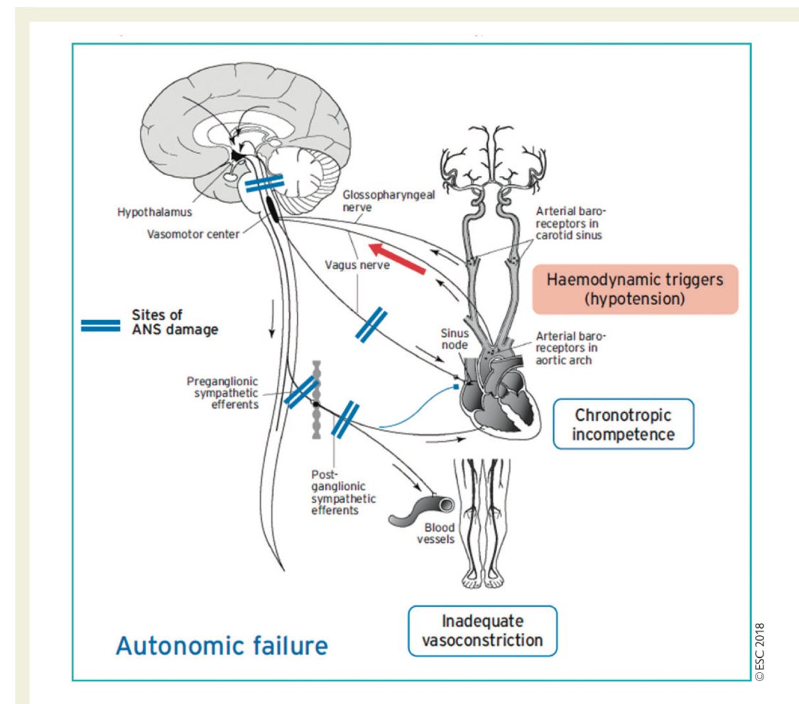 hight resolution of alfonso valle on twitter the mechanism of autonomic failure orthostatic hypotension v a escardio practical instructions for treatment of reflex syncope