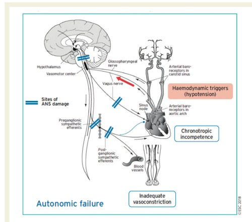 small resolution of alfonso valle on twitter the mechanism of autonomic failure orthostatic hypotension v a escardio practical instructions for treatment of reflex syncope