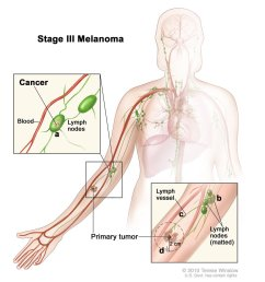 of the body than other types of skin cancer https www cancer gov types skin patient melanoma treatment pdq section 67 pic twitter com tfykmkcenj [ 1146 x 1162 Pixel ]