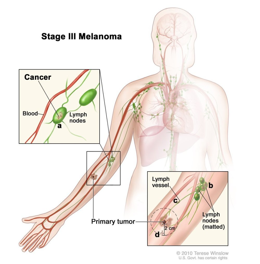 medium resolution of  of the body than other types of skin cancer https www cancer gov types skin patient melanoma treatment pdq section 67 pic twitter com tfykmkcenj