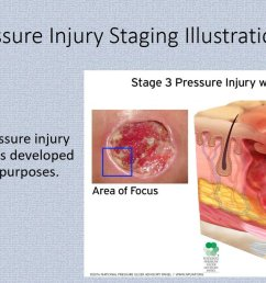 npuap on twitter visit https t co pjlhsxalcz to view and download pressure injury staging illustrations  [ 1199 x 678 Pixel ]