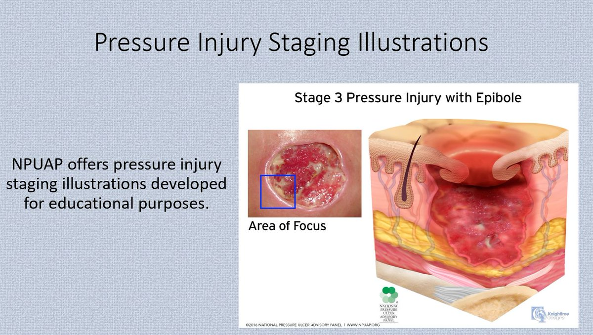 hight resolution of npuap on twitter visit https t co pjlhsxalcz to view and download pressure injury staging illustrations