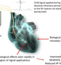 contractility modulation on exercise tolerance quality of life in hfref could this support premarket approval of this novel device by us fda  [ 1200 x 833 Pixel ]