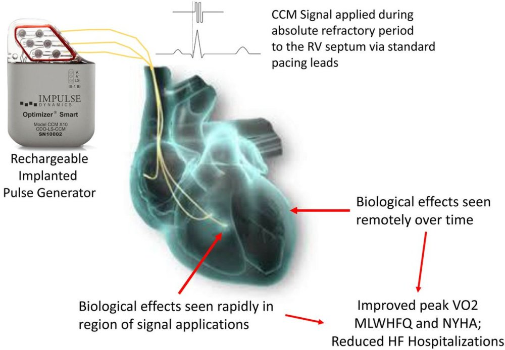 medium resolution of  contractility modulation on exercise tolerance quality of life in hfref could this support premarket approval of this novel device by us fda