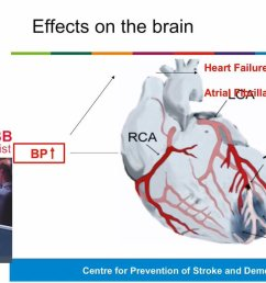 take a look at the recent public talk given by dr alastair webb about the link between high bloodpressure and stroke https oxfordbrc nihr ac uk videos  [ 1200 x 673 Pixel ]