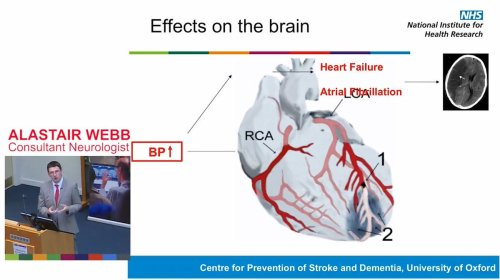 small resolution of take a look at the recent public talk given by dr alastair webb about the link between high bloodpressure and stroke https oxfordbrc nihr ac uk videos
