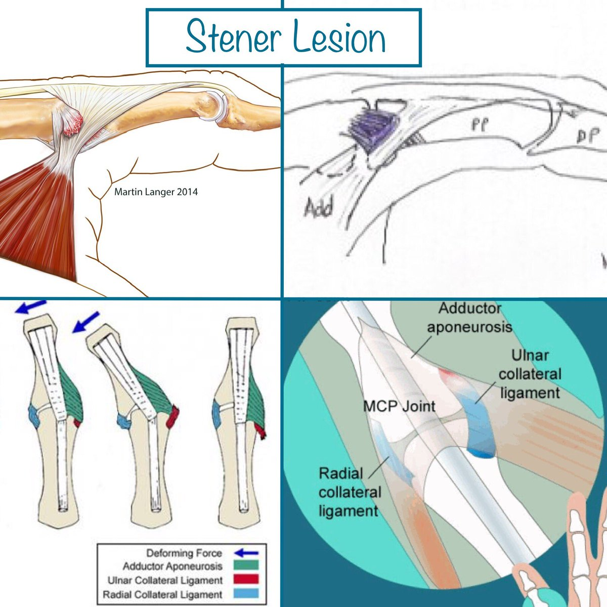 hight resolution of the ucl partially or completely tears the adductor pollicis aponeurosis becomes stuck btwn the torn ucl and its insertion the base of proximal